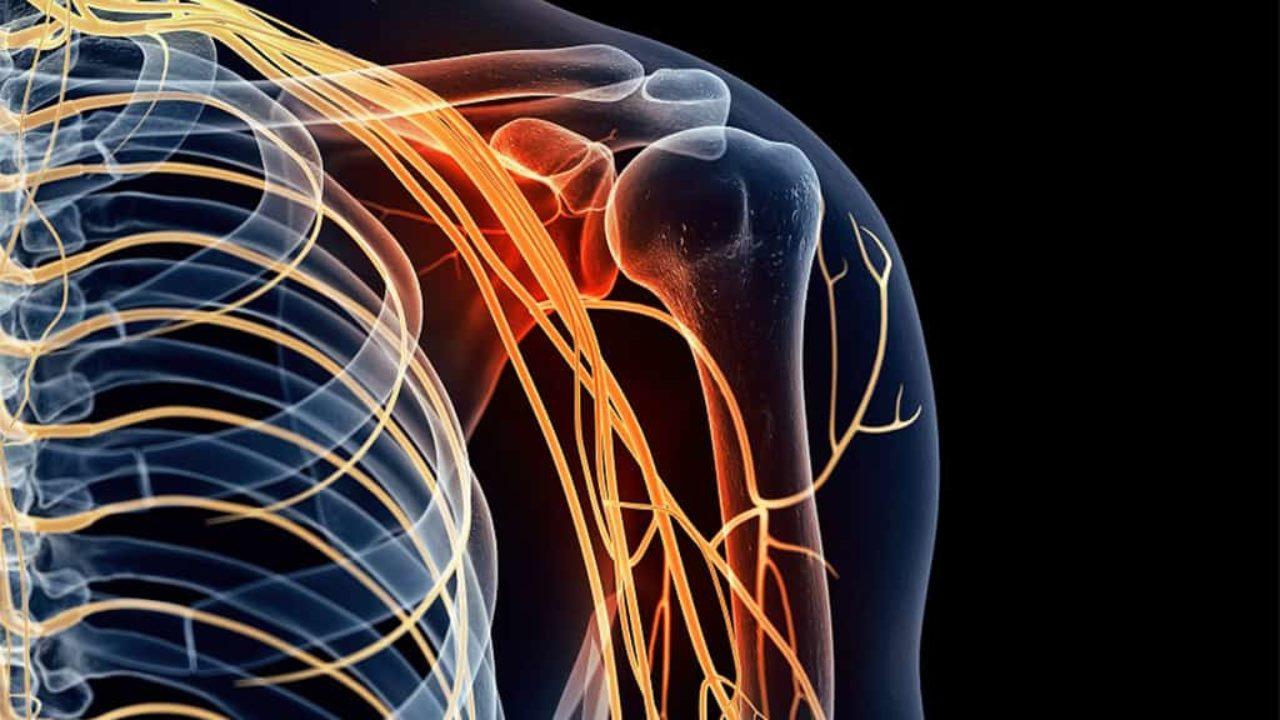 Bệnh lý đám rối thần kinh cánh tay-Dấu hiệu, triệu chứng và cách điều trị