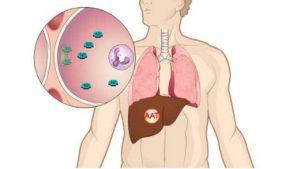 Ung thư đại tràng - Nguyên nhân, triệu chứng và cách điều trị